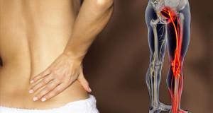 ما هو عرق النسا ؟ الأسباب والأعراض والعلاج