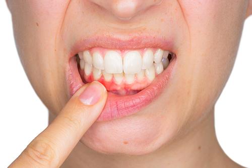 ما هو التهاب اللثة؟ الأعراض والعلاج