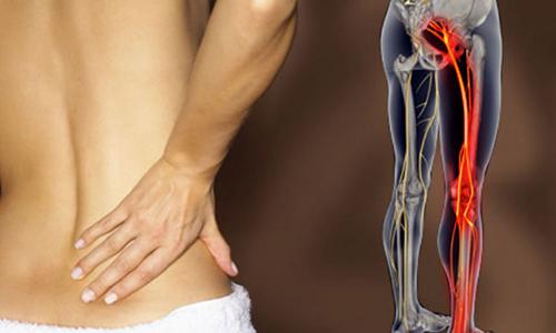 ماهو عرق النسا العلاج والأسباب والأعراض