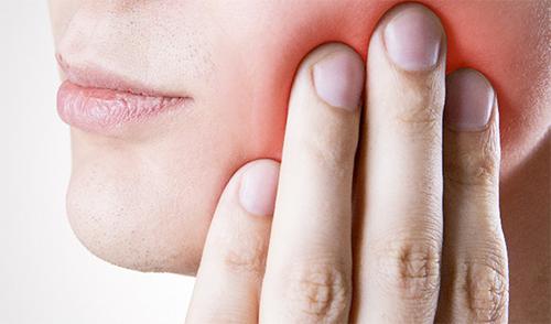 ماهو علاج تسوس الأسنان واعرضه وأسبابه Tooth Decay