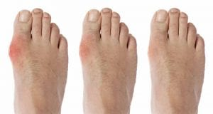 ماهو علاج مرض النقرس واعراضه وأسبابه Gout