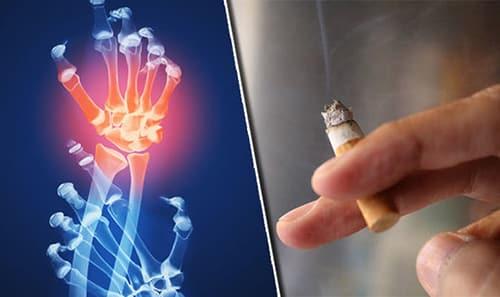 أسباب التهاب المفاصل الروماتويديRheumatoid Arthritis