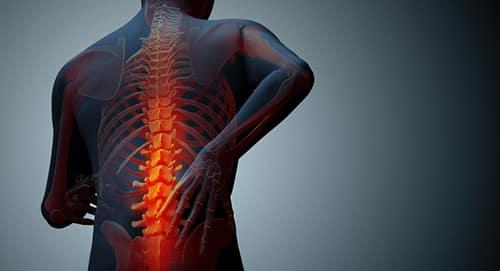 ماهو علاج التهاب الفقرات واعرضها وأسبابها Spondylitis