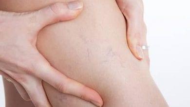 ماهي دوالي الساقين الأسباب والعلاج والأعراض Varicose Veins