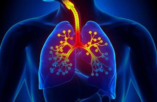 أعراضالنزلة الشعبية Bronchitis