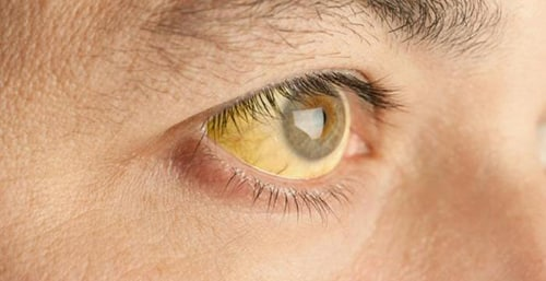 أعراض الالتهاب الكبدي الوبائي سيHepatitis C