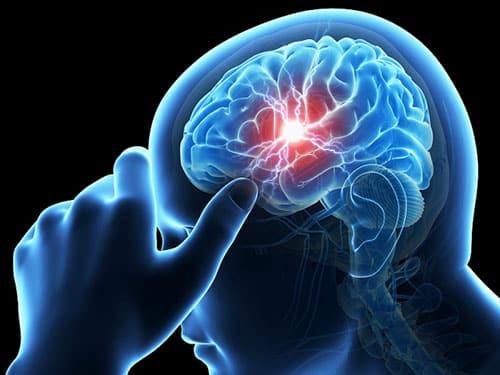 أعراضالصداع النصفي Migraines