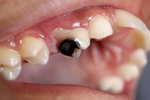 أعراض تسوس الأسنانTooth Decay